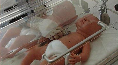 Родившийся ребенок-робот