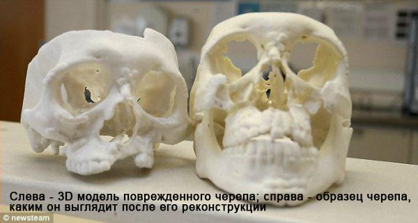3D модели черепа