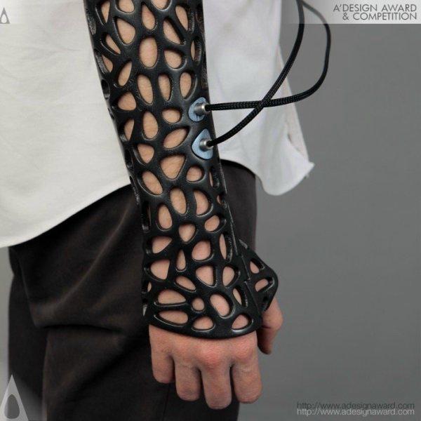 3D-печатная «гипсовая повязка»